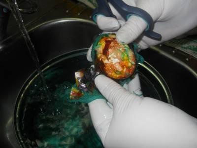 8. Варить яйца после закипания 10-15 минут. Затем остудить под холодной водой и аккуратно очистить их от бинта. При этом лучше всего надеть перчатки. Яйца крашенные зеленкой в домашних условиях готовы. При желании можно их еще натереть растительным маслом, чтобы они были еще ярче и красиво блестели.